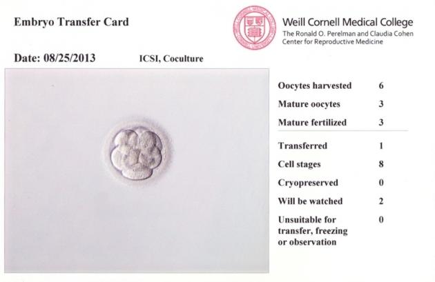 EmbryoTransferCard